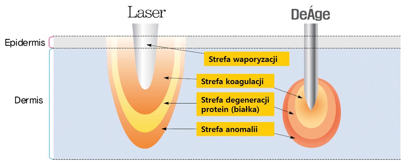 zabiegi Lepsze niż Laserowe