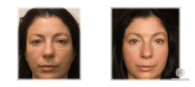 ematrix-frakcjonowanie-skóra