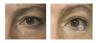 eyematrix-przed-i-po-l