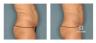 vs3-przed-i-po-brzuch-meski