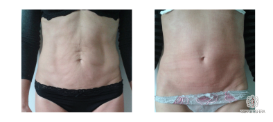 lifting-skóry-ciało