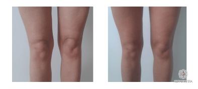 Hifu modelowanie kolan
